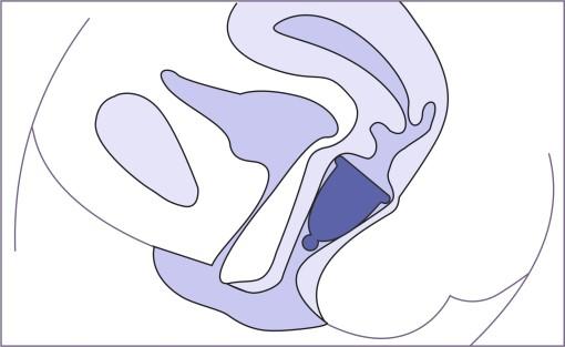 la position exacte d'une coupe menstruelle -  Nappilla