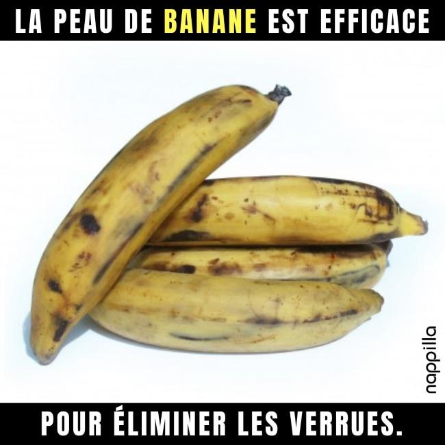 Les vertus de la peau de banane, un déchet pas comme les autres !