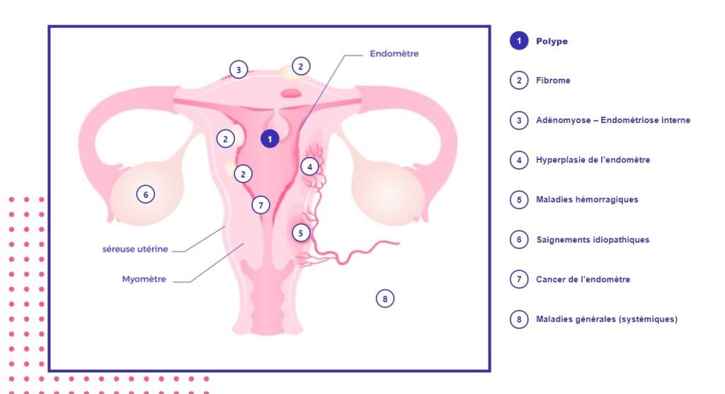Des règles menstruelles abondantes, voici les causes possibles - infographie regles-abondantes.fr
